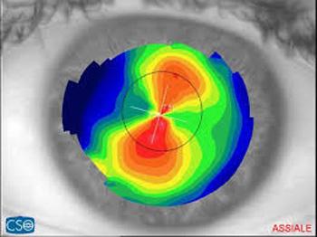 topografia astigmatismo