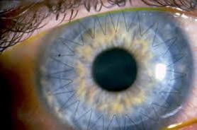 trapianto di cornea cheratonoco