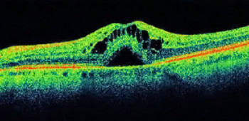 OCT edema maculare