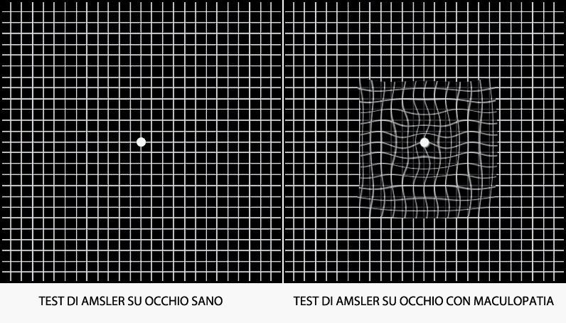 maculopatia_test_amsler