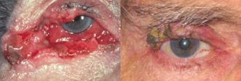 carcinoma a cellule squamose